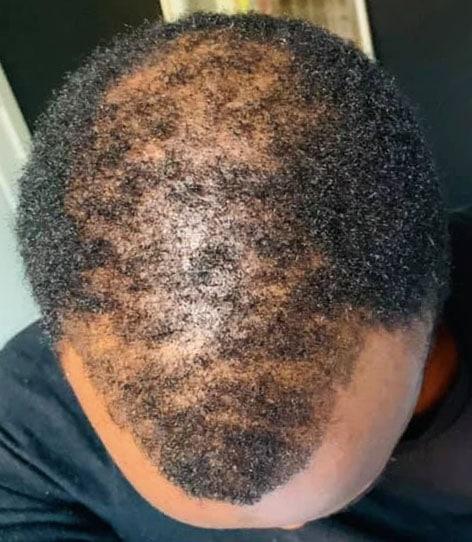 Lasercap can help regrow African American hair