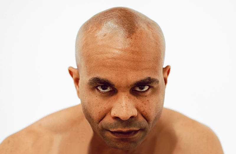 Can Capillus Stop African American Hair Loss?