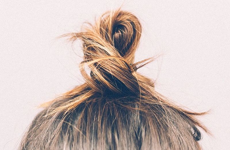 What Is Traction Alopecia and How Can I Cure It?